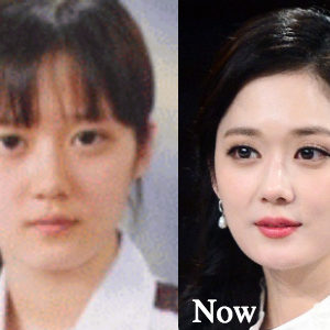 Jang Nara Plastic Surgery before and after photos