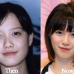 Ku Hye Sun Plastic Surgery Before and After Photos