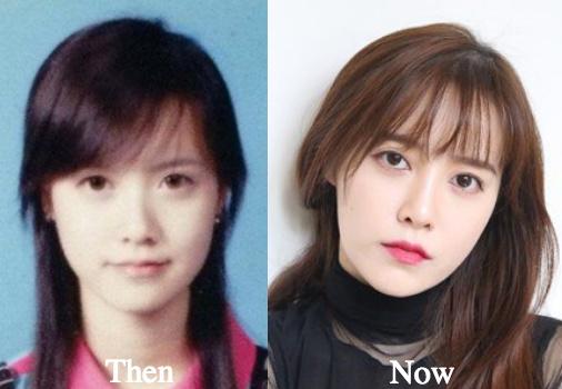 Ku Hye Sun facelift