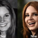Lana Del Rey Plastic Surgery Before and After Photos