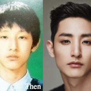 Lee Soo Hyuk Plastic Surgery before and after photos