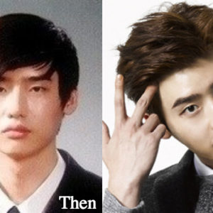 Lee jong suk plastic surgery before and after photos
