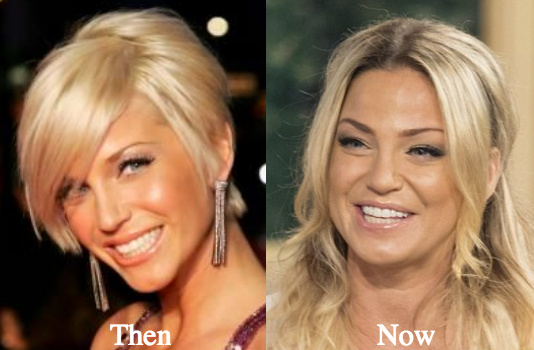 plastic surgery before after