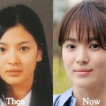 Song Hye Kyo Plastic Surgery Before and After Photos
