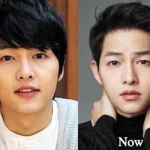 Song Joong Ki Plastic Surgery Before and After Photos