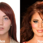 Amy Childs Plastic Surgery Before and After Photos