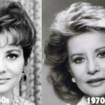 Barbara Walters Plastic Surgery Before and After Photos
