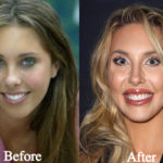 Chloe Lattanzi Plastic Surgery Before and After Photos