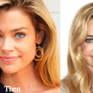 denise-richards-plastic-surgery-before-and-after-photos