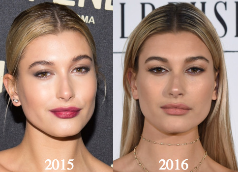 how to tell if someone has lip injections