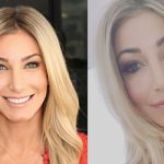Heather Bilyeu Plastic Surgery Before and After Photos