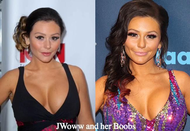 JWoww breast augmentation