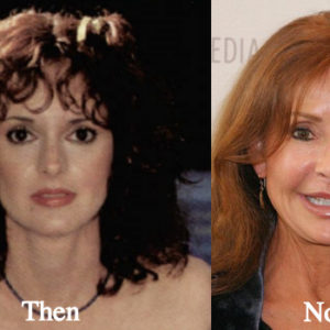 jackie-zeman-plastic-surgery-before-and-after-photos