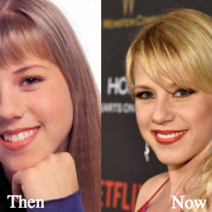 Kourtney Kardashian Plastic Surgery Before And After Boob