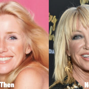 suzanne-somers-plastic-surgery-before-and-after-photos