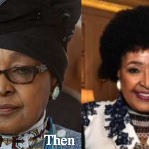 winnie-mandela-plastic-surgery-before-and-after-photos
