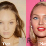 Candice Swanepoel Plastic Surgery Before and After Photos