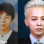 G Dragon Plastic Surgery Before and After Photos
