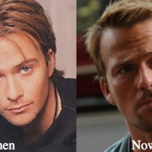 sean-patrick-flanery-plastic-surgery-before-and-after-photos