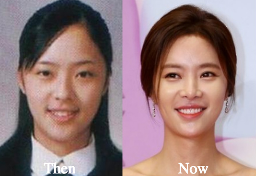 hwang-jung-eum-plastic-surgery-before-and-after-photos