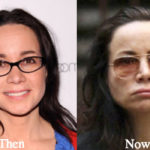 Janeane Garofalo Plastic Surgery Before and After Photos