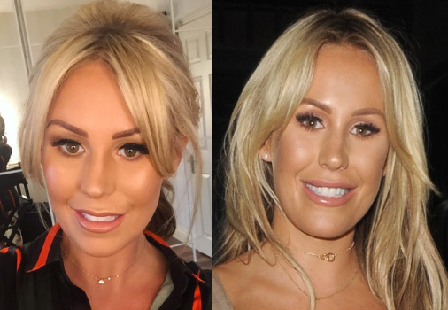 kate-wright-plastic-surgery