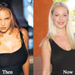 Katherine Heigl Plastic Surgery Before and After Photos