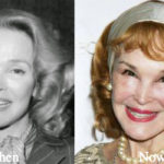 Kathryn Crosby Plastic Surgery Before and After Photos