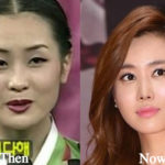 Lee Da Hae Plastic Surgery Before and After Photos
