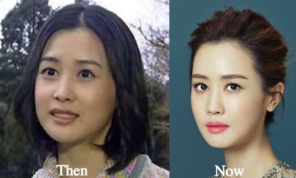 lee-da-hae-jawline-surgery-botox