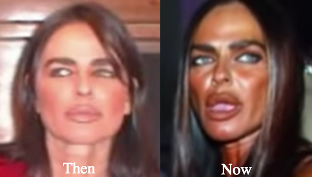 michaela-romaninin-before-and-after