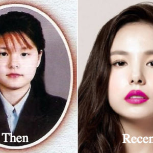 min-hyo-rin-plastic-surgery-before-and-after-photos