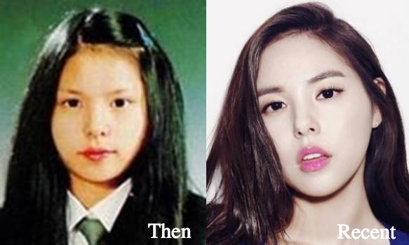 min-hyo-rin-eyelid-surgery