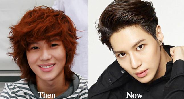 taemin-cosmetic-surgery