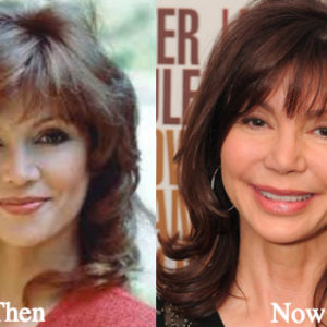 victoria-principal-plastic-surgery-before-and-after