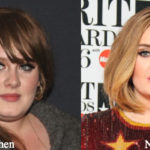 Adele Plastic Surgery Rumors Before and After Photos