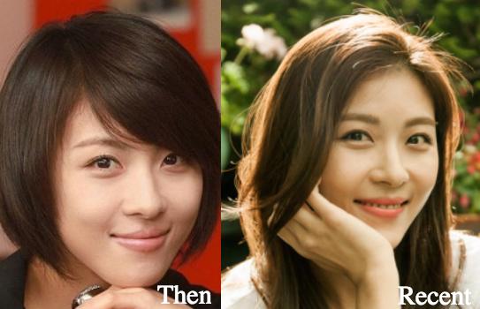 ha-ji-won-before-and-after