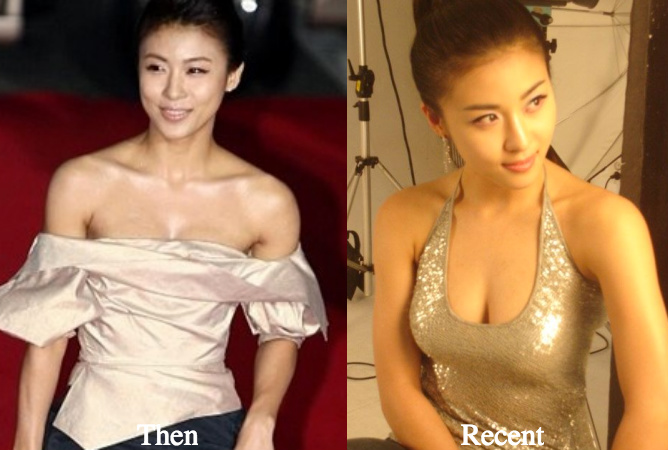 ha-ji-won-breast-implants-surgery-rumors-before-and-after