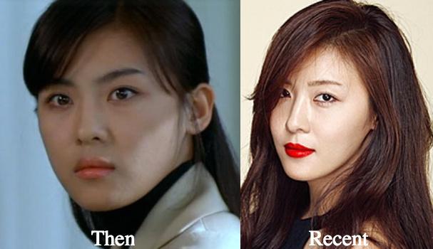 ha-ji-won-facial-fillers-before-and-after