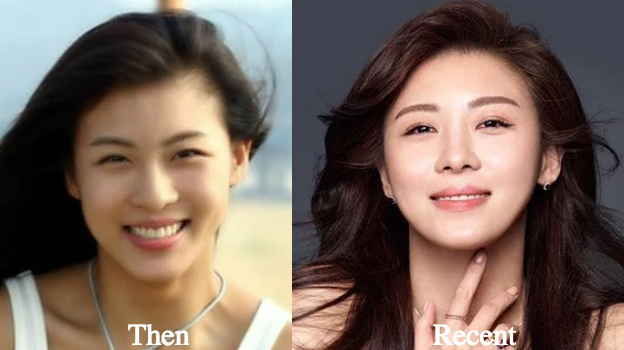 Ha Ji Won Plastic Surgery Before and After Photos