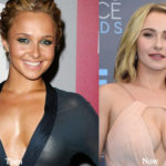 Hayden Panettiere Plastic Surgery Before and After Photos