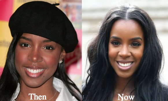 kelly rowland plastic surgery before and after photos