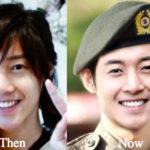 Kim Hyun Joong Plastic Surgery Before and After Photos