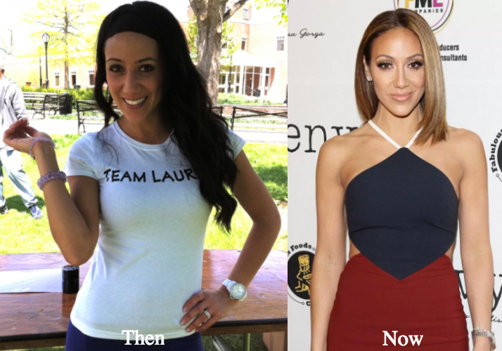 melissa-gorga-before-and-after