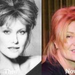 Deborra-Lee Furness Plastic Surgery Before and After Photos