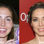 Whitney Cummings Plastic Surgery Before and After Photos