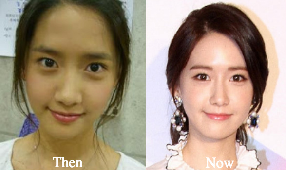 Yoona Plastic Surgery Before and After Photos