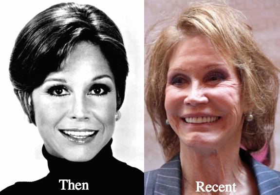 Mary Tyler Moore Plastic Surgery Before and after Photos