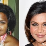 Mindy Kaling Plastic Surgery Before and After Photos