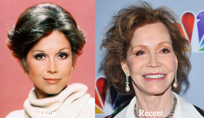 mary tyler moore cheek fillers and lift before and after